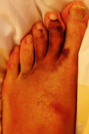 Trace Adkins Foot
