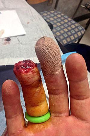 Jakes Finger