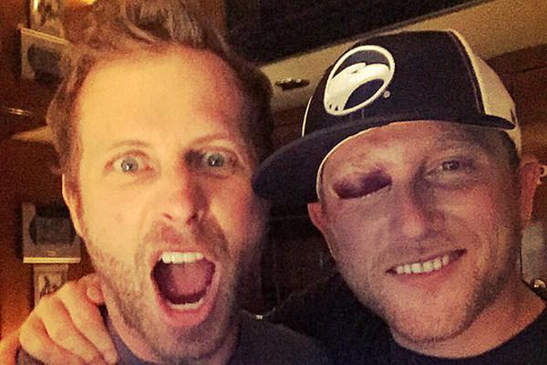 Cole Swindell Reveals Gruesome Black Eye